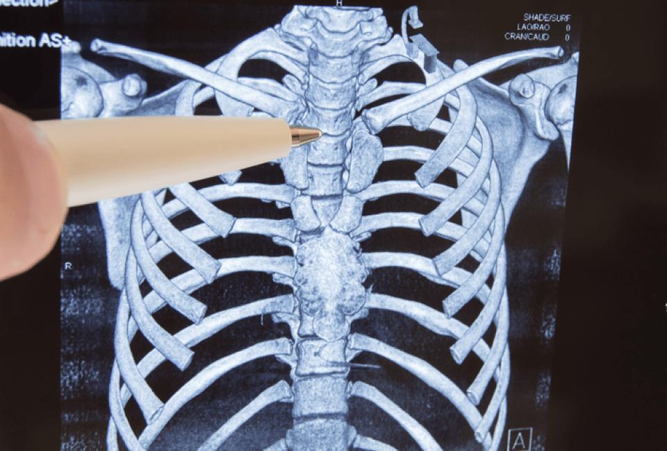 Failed-Back-Surgery-Syndrome