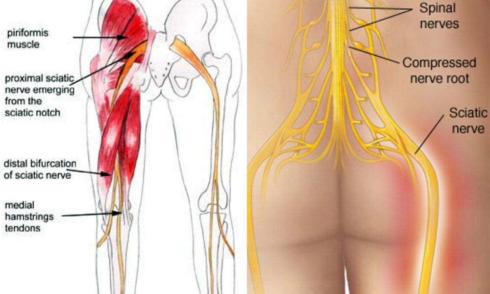 5 Tricks To Beat Your Sciatica Without PainKillers