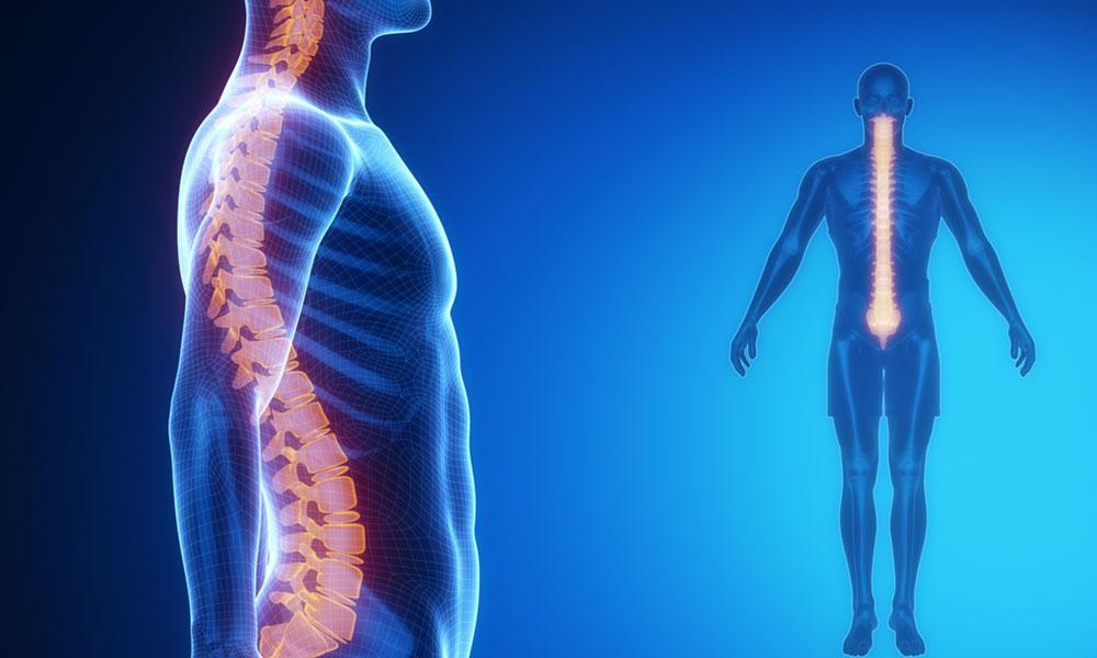 Understanding Scoliosis And Its Effects On You