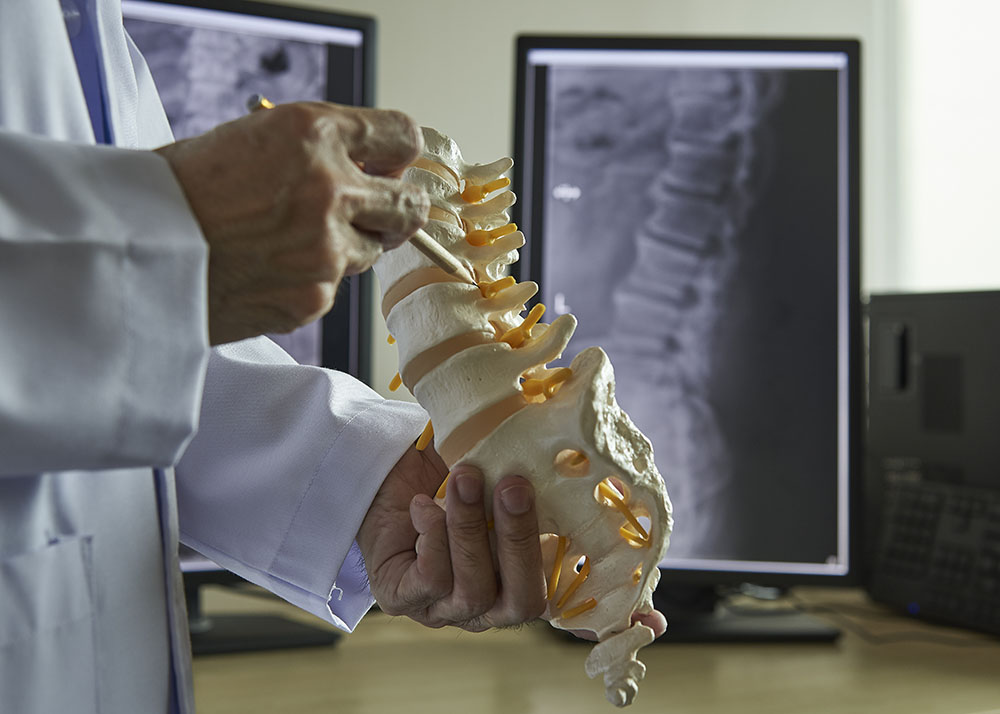 holding a spine